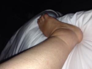 edema alle caviglie