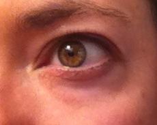 Puffy under eyes
