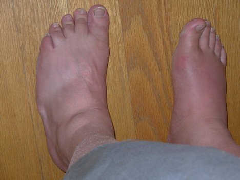 water retention with swollen ankles